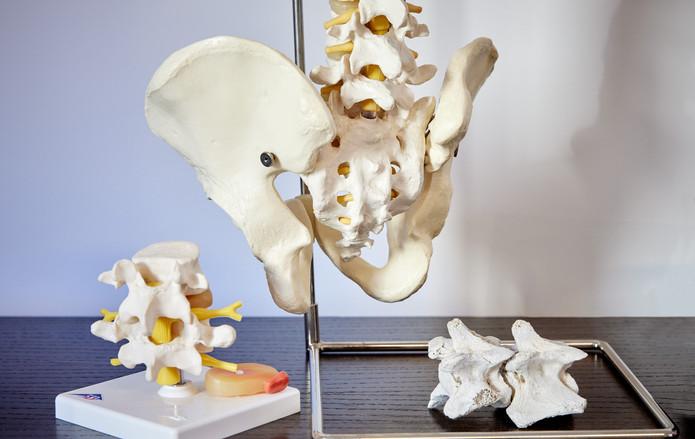 Chiropraxis Schwall, Chiropraktik und Osteopathie in Köln, WS-, Bandscheibenprotrusion u. - prolaps - Modell