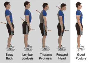embrace chiropractic Poor posture causes neck and shoulder pain