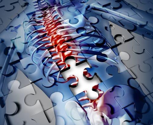 Makin sense of back pain puzzle