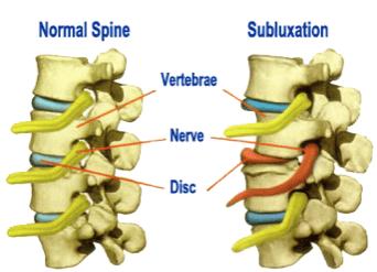 chiropractic helps subluxations