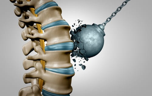 Healthy Spinal Discs