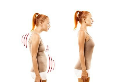 What Is Poor Posture Doing For Your Health ?