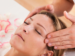 Research Proves Acupuncture Reduces Stress