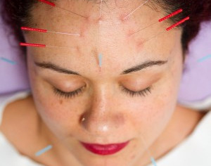 Acupuncture Clears Acne: Meta-Analysis Study Reveals High Rate of Success