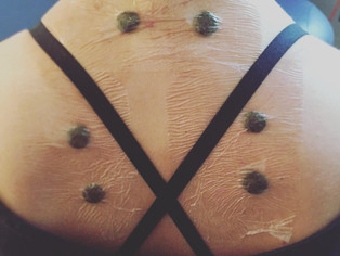 San Fu Moxibustion: Eliminate Asthma, Allergies and Chronic Respiratory Issues