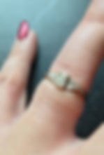A ring that is too tight on a ladies hand