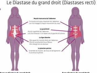 La ligne blanche & le diastasis ...Que faire ?