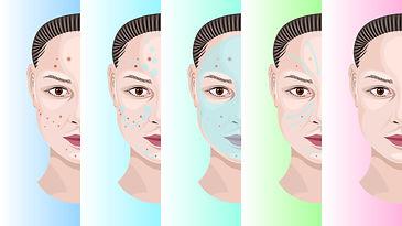 1730_Woman_face_step_by_step_treatment_acne.jpg