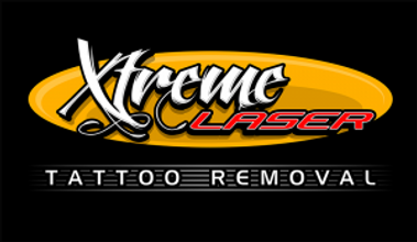xtremeINK-tattoremoval-logo-300x174.png