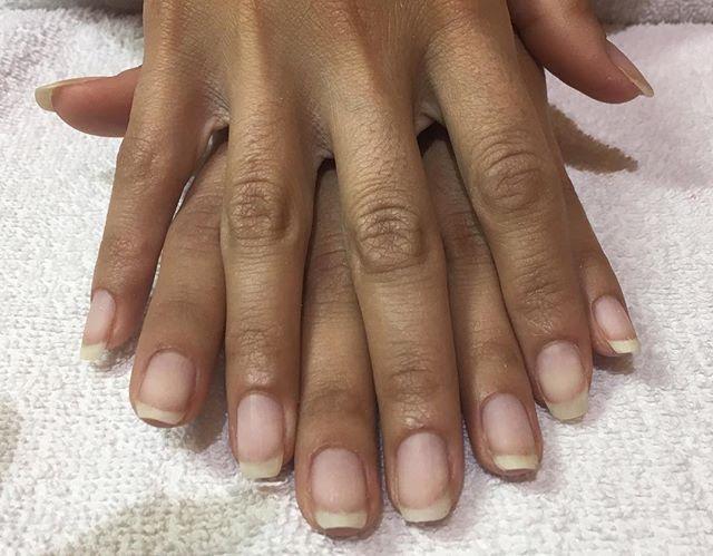 Healthy natural nails after shellac remo