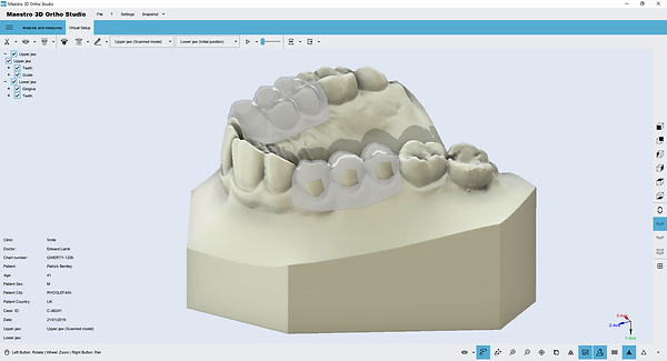 m3d.clear.aligner.brackets.with.windows.