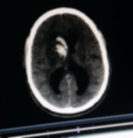 CAT Scan of Hemorrhagic Stroke