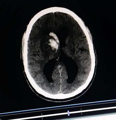 CAT Scan of Hemorrhagic Stroke