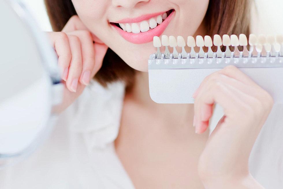 Teeth Whitening2.jpg