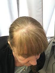 hair-piece-before-3.jpeg