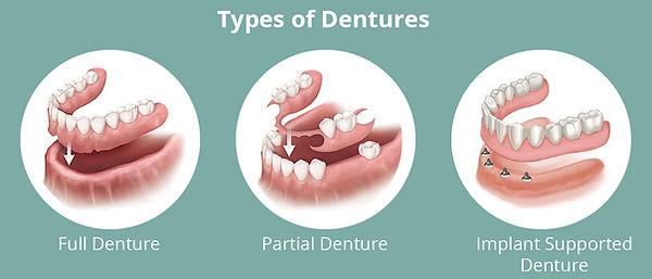 Type-of-denture.jpg