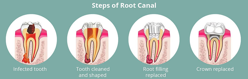 steps-of-root-canal.jpg