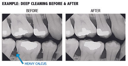deep cleaning x-rays