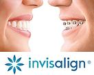 Invisalign vs. braces.png
