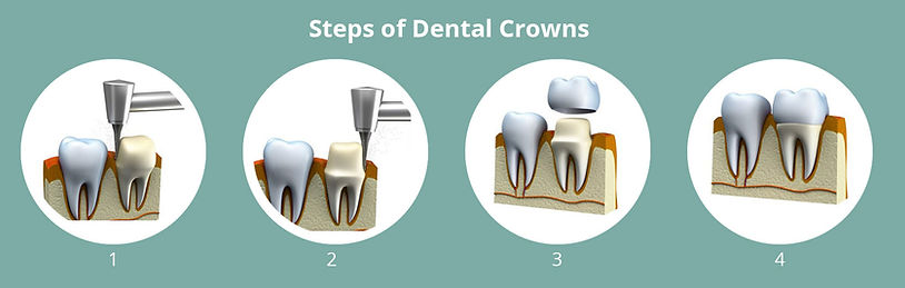 Steps-of-Dental-Crowns.jpg