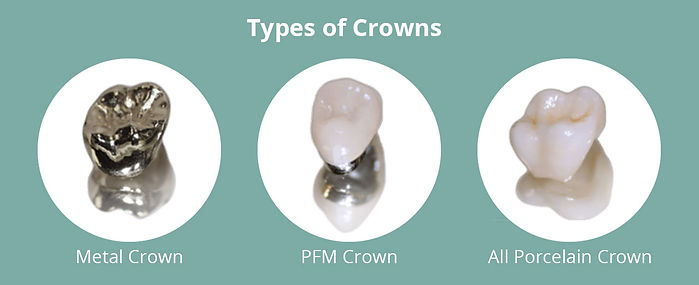 Type-of-crowns.jpg