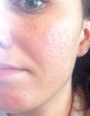 Adult Acne After 1