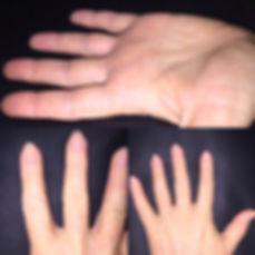 Eczema Sufferer healed - hands