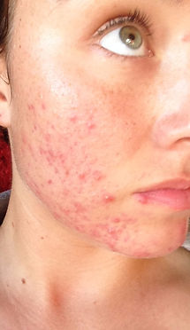 Adult Acne Before Side