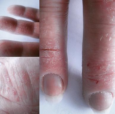 Eczema Sufferer - Hands