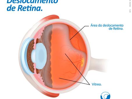 Deslocamento de Retina é emergência oftalmológica.