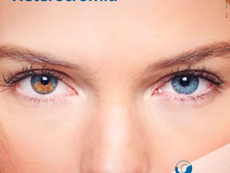 Heterocromia: Olhos com cores distintas