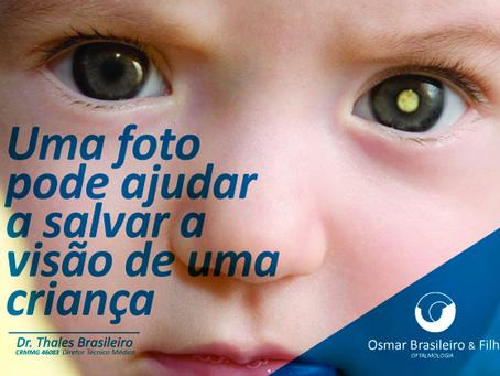 Retinoblastoma. Fique de olho!