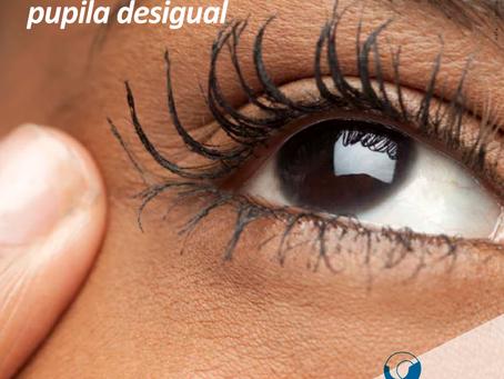 Síndrome da pupila desigual. O que é?