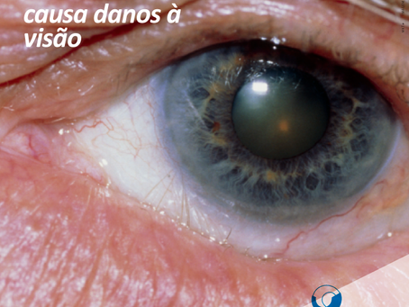 Cílios Invertidos causa danos à visão