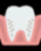 molar (3).png