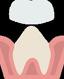 molar (2).png