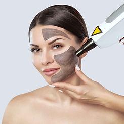 carbon laser peel facial.jpg