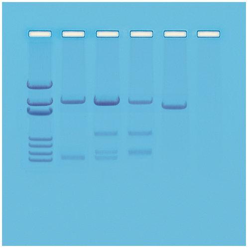DNA Paternity Testing Simulation (1006530)