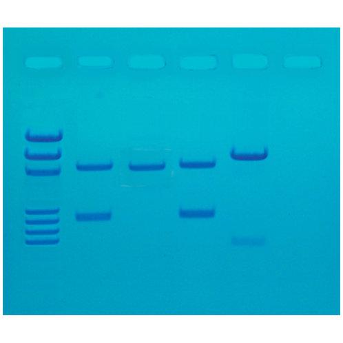 DNA Fingerprinting by PCR Amplification (1006595)