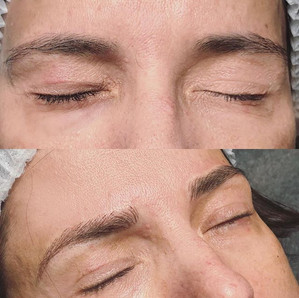 (BEFORE _ AFTER) - MICROBLADING_- El mic