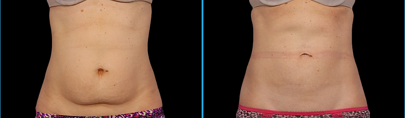 tummy fat Coolsculpting fat feezing non-surgical weight loss