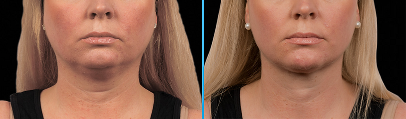 double chin Coolsculpting fat feezing non-surgical weight loss