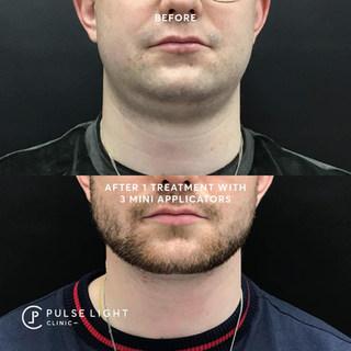 Fat Freezing Double Chin