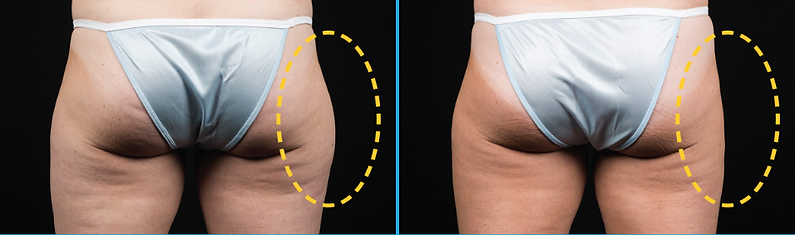 love handles Coolsculpting fat feezing non-surgical weight loss