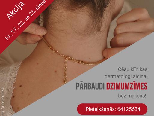 Cēsu klīnikas dermatologi jūnijā veiks dzimumzīmju bezmaksas pārbaudes melanomas diagnosticēšanai