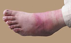 Severe burn healing process