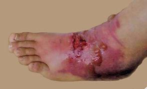 Severe burn on foot