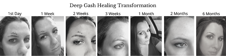 Severe Wound Healing Transformation.png