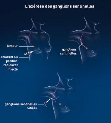 ganglion sentinelle scintigraphie Nimes.