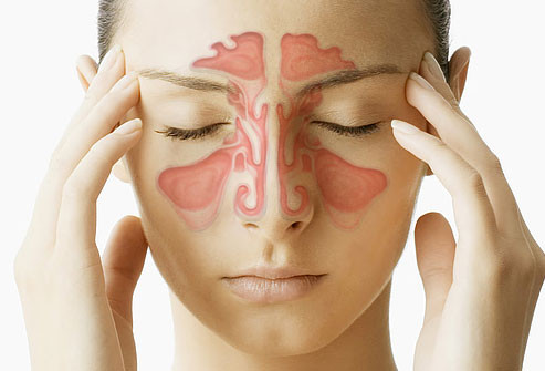 Chronic sinusitis and Chiropractic care